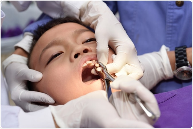 tooth extraction risks