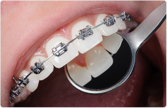 Open mouth showing stainless steel braces. Image Credit: Anatoliy_gleb / Shutterstock