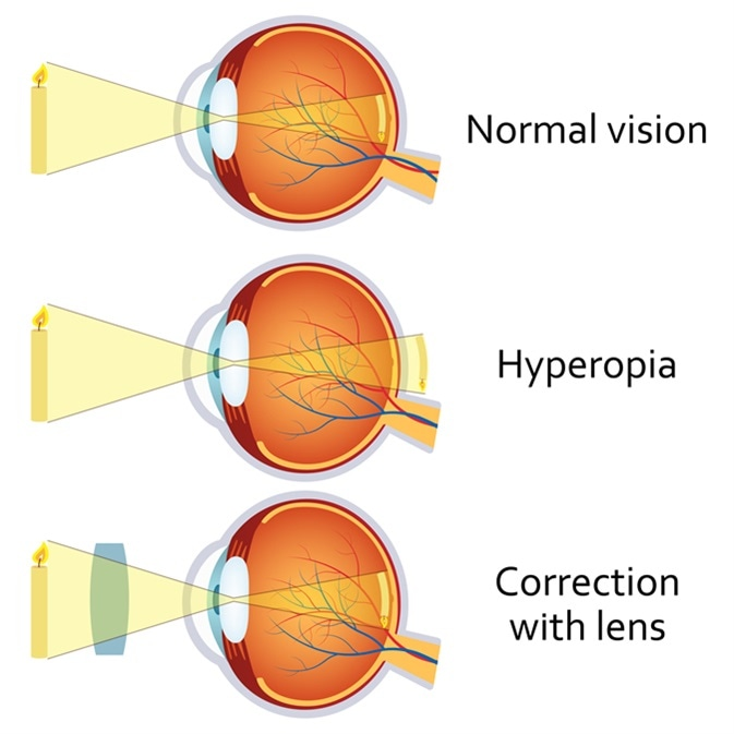 Hyperopia and Hyperopia corrected by a plus lens. Eye vision disorder. Image Credit: Neokryuger / Shutterstock