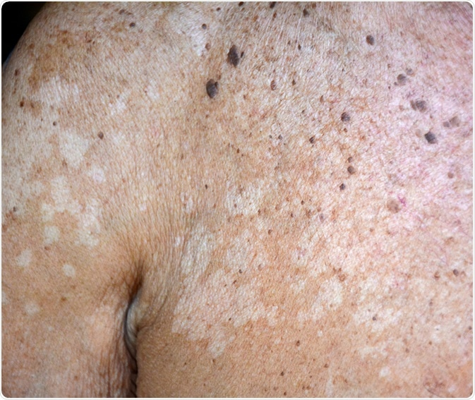 Tinea versicolor/Pityriasis versicolor on the skin. Image Credit: sutham / Shutterstock
