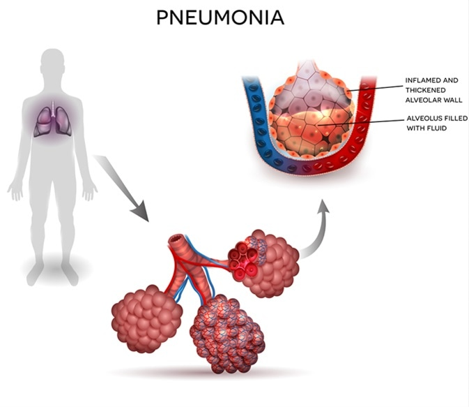 Pneumonia illustration, human silhouette with lungs, close up of alveoli and inflamed alveoli with fluid inside. Image Credit: Tefi / Shutterstock