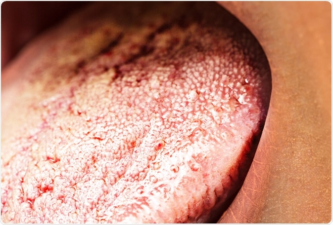 Tongue with candidiasis. Image Credit: Sruilk / Shutterstock