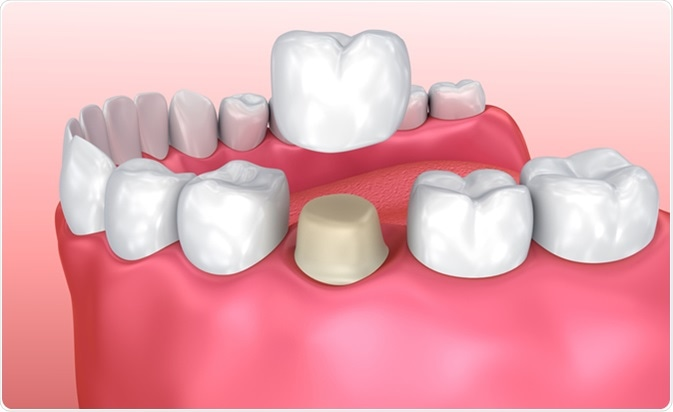 Dental Crown Build Up Cost