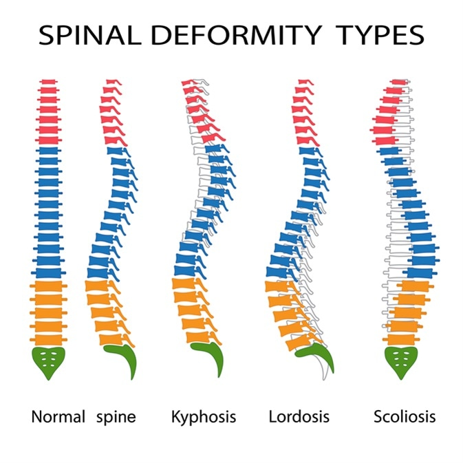 Illustration of spinal deformity types. Kyphosis, lordosis and scoliosis. Image Credit: Neokryuger / Shutterstock
