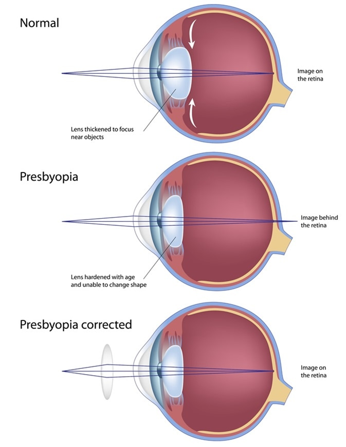 Eye condition Presbyopia. Image Credit: Alila Medical Media / Shutterstock