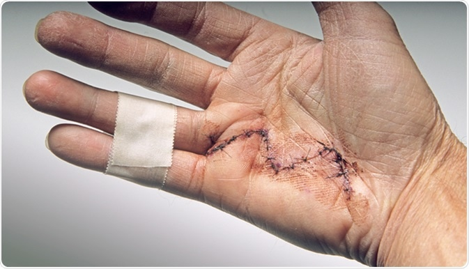 Hand surgery done to alleviate Dupuytren's contracture. Image Credit: Christian Delbert / Shutterstock
