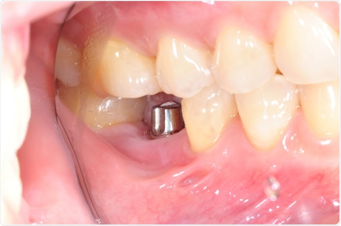 Single tooth implant. Image Credit: Greenbutterfly / Shutterstock