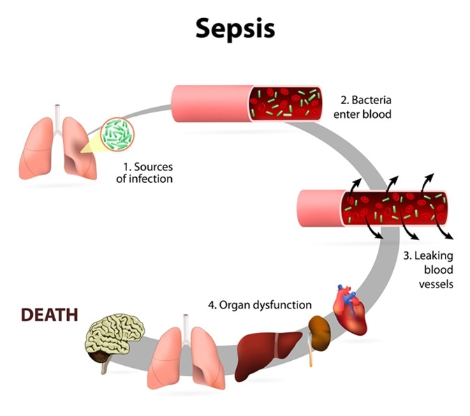 Sepsis or septicaemia is a life-threatening illness. Presence of numerous bacteria in the blood, causes the body to respond in organ dysfunction. Image Credit: Designua / Shutterstock