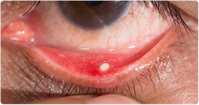 Measles, Mumps and Rubella