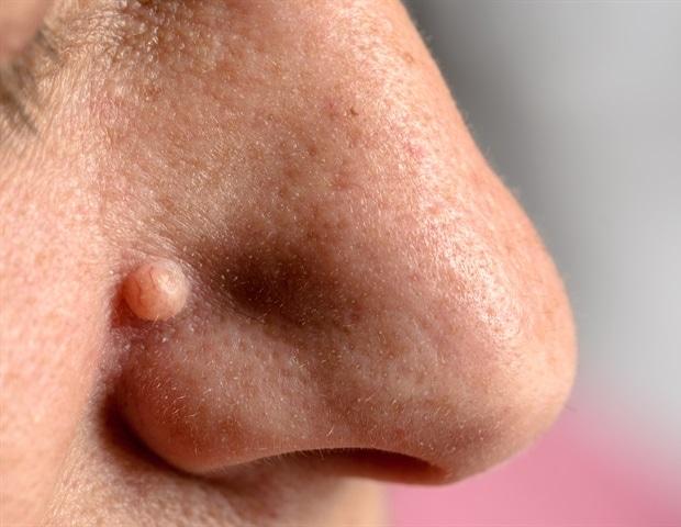 vulva y verrugas