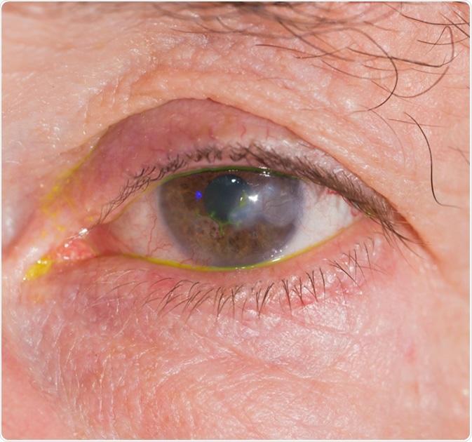 microscopía confocal corneal diabetes mellitus