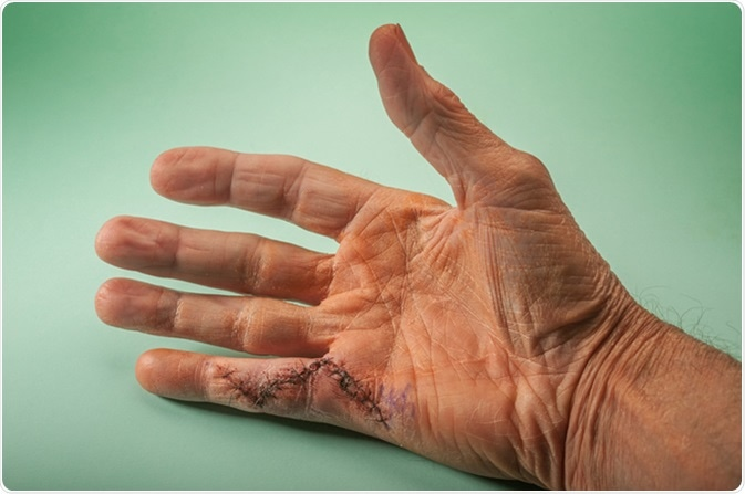 Dupuytren's Contracture: Causes and Symptoms