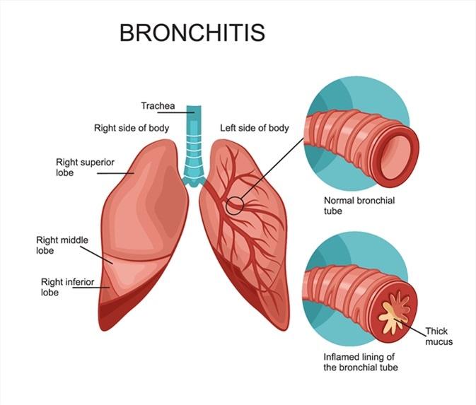 Bronkities