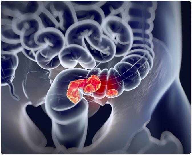 cancer colon survie