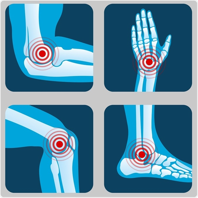 Types of Arthritis-turmeric-benefits-for-arthritis