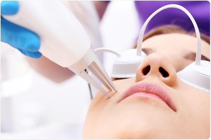 Acne Surgery