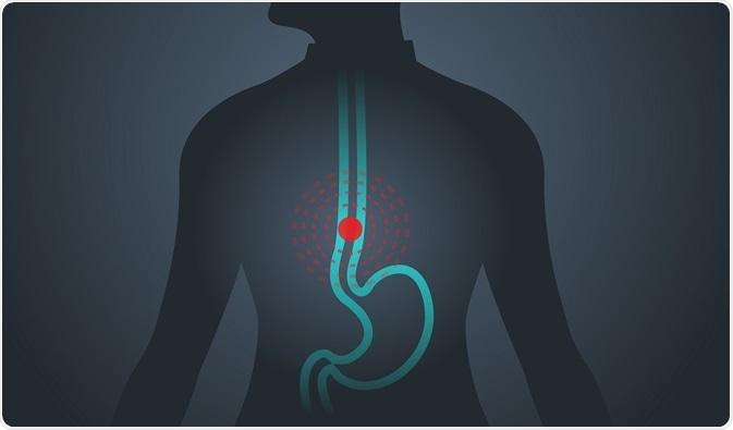 Sympt40mes de cancer de l'oesophage
