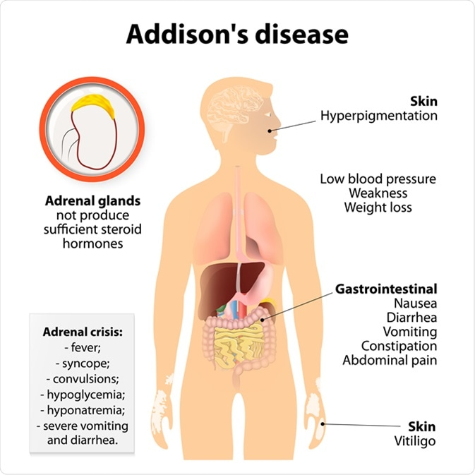 What Is Addisons Disease