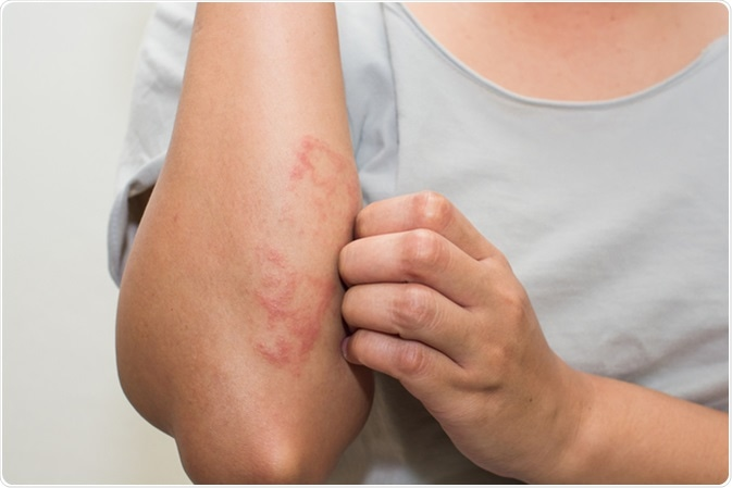 Differentiating Between Eczema and a Rash