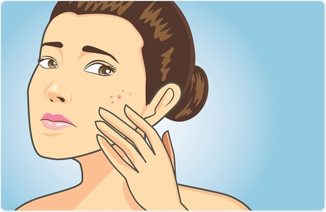 Acne Preventing And Reducing Scarring