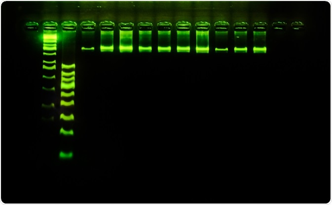 Electrophoresis As A Tool In Forensics