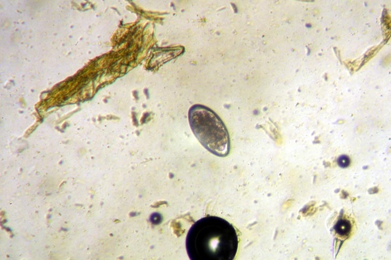 Haemonchus Contortus Egg Detection and Quanitification