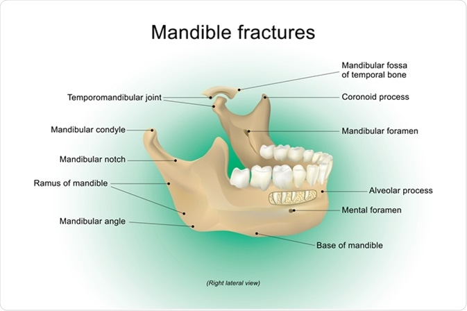 What are Mandibular Fractures?