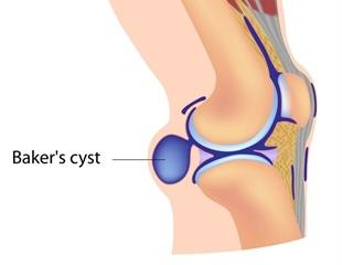 Calcificazione al ginocchio