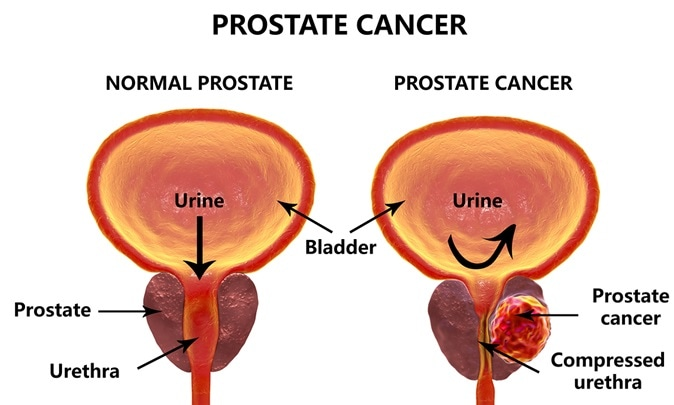 Image result for prostate cancer