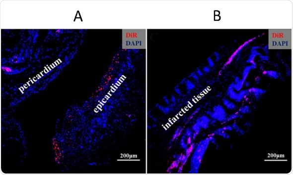 Potential stem cell treatment aids regeneration of heart muscle ...