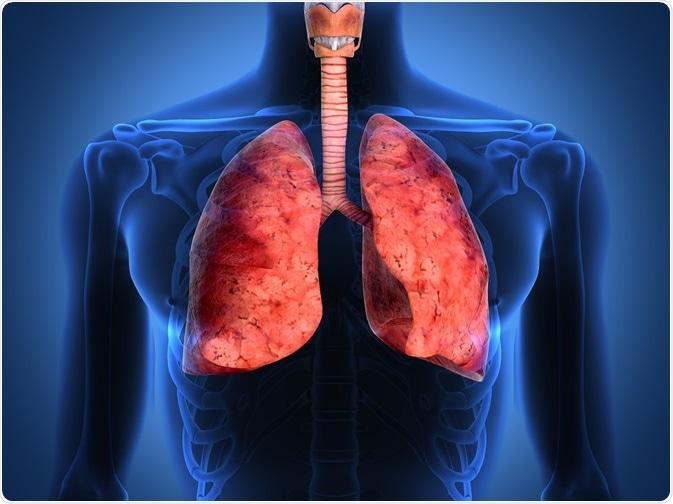 Historia del asma
