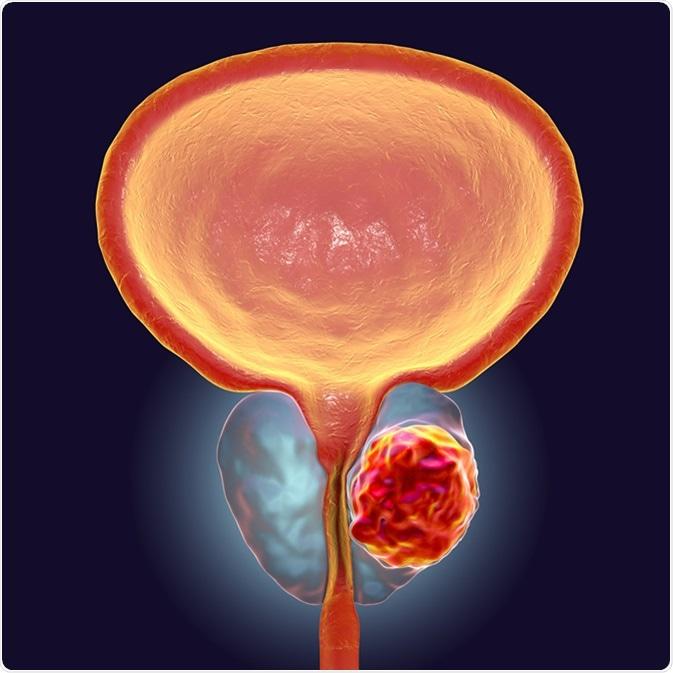 Se debe MRI utilizar para diagnosticar al cáncer de próstata?