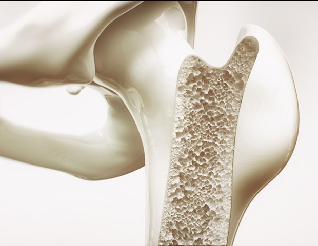 Study links bone strength to timing of puberty
