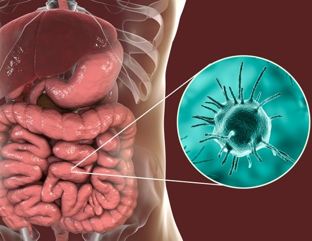 What is Amebiasis?