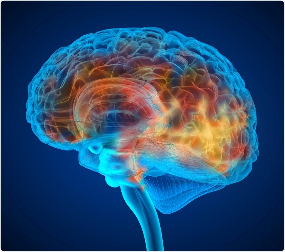 Study Suggests Brain Inflammation Is >> Extensive Brain Inflammation Present In Fibromyalgia Patients Shows