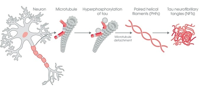 Formation of neurofibrillary tangles (NFTs) by the tau protein in tauopathies such as Alzheimer's disease (AD). Under pathological conditions tau becomes hyperphosphorylated and detaches from microtubules. Phosphorylated tau then aggregates to form paired helical filaments (PHFs) and neurofibrillary tangles (NFTs).