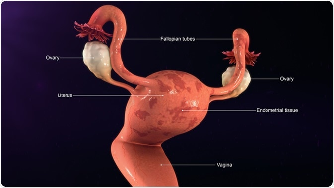 Endometrial Tissue 3d illustration. Image Credit: Sciencepics  / Shutterstock