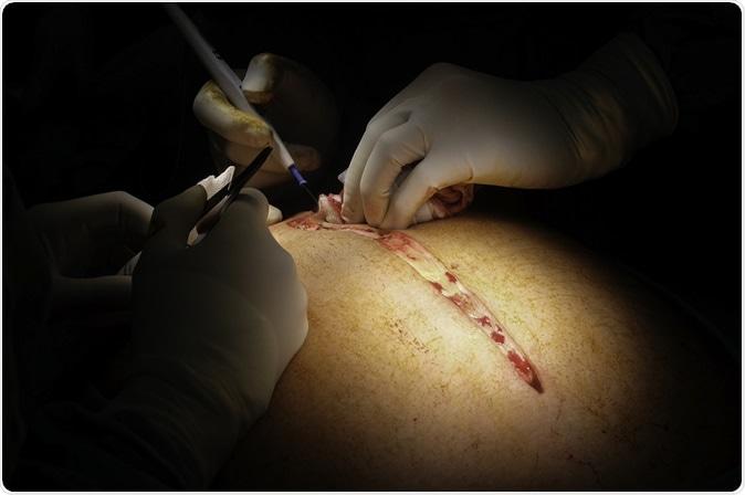 fatness surgery