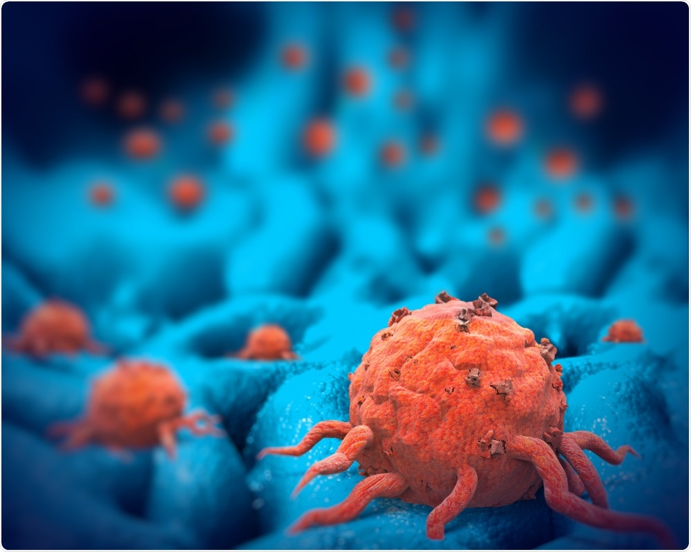 Cancer cell in tissue - Giovanni Cancemi