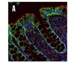 Combining Organelle Markers with Defined Isotypes to Achieve Multiplex IHC-IF