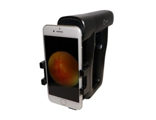 Smartphone-Based Ophthalmoscopy for Optic Disk Assessment in Patients with Headaches