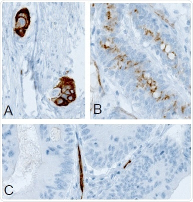(A) Membranous, (B) non-membranous/cytoplasmic, and (C) absence of immunoreactivity in colorectal tumor samples following IHC staining with Anti-PODXL (AMAb90667) antibody.