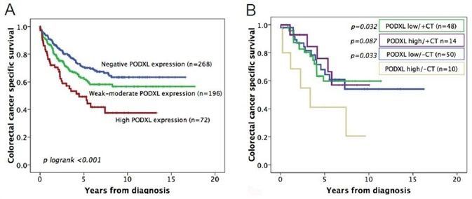 (A) Kaplan-Meier analysis of colorectal cancer-specific survival of patients with tumors expressing no, weak/moderate, or high levels of PODXL protein. (B) Kaplan-Meier analysis of colorectal cancer-specific survival, where patients are divided into groups according to whether they received adjuvant chemotherapy (CT) or not, as well as the level of tumor PODXL expression (high or low).