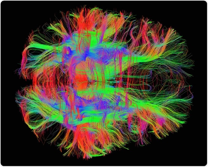 White matter fiber tracts in the adult human brain. Image Credit: Zeynep Saygin, mcgovern.mit.edu