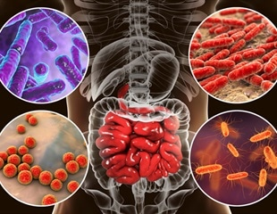 Microbial Dysbiosis and Colorectal Cancer