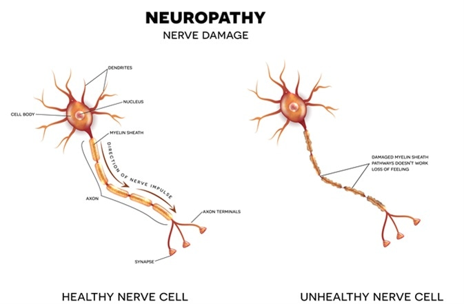 Neuropathy that is the damage of nerves. Image Credit: Tefi / Shutterstock