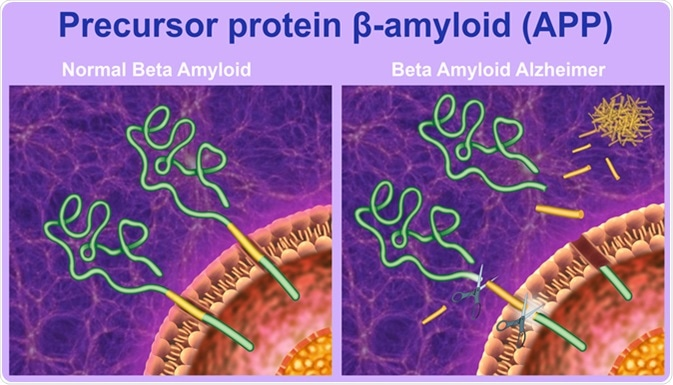 The proteolytic processing of the precursor protein beta-amyloid. Image Credit: Ilusmedical / Shutterstock