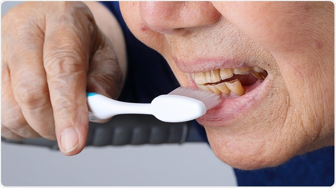 Elderly dental erosion. Image Credit: Toa55 / Shutterstock