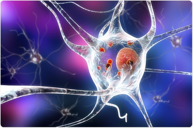 Parkinson's disease. 3D illustration showing neurons containing Lewy bodies small red spheres which are deposits of proteins accumulated in brain cells that cause their progressive degeneration. Image Credit: Kateryna Kon / Shutterstock