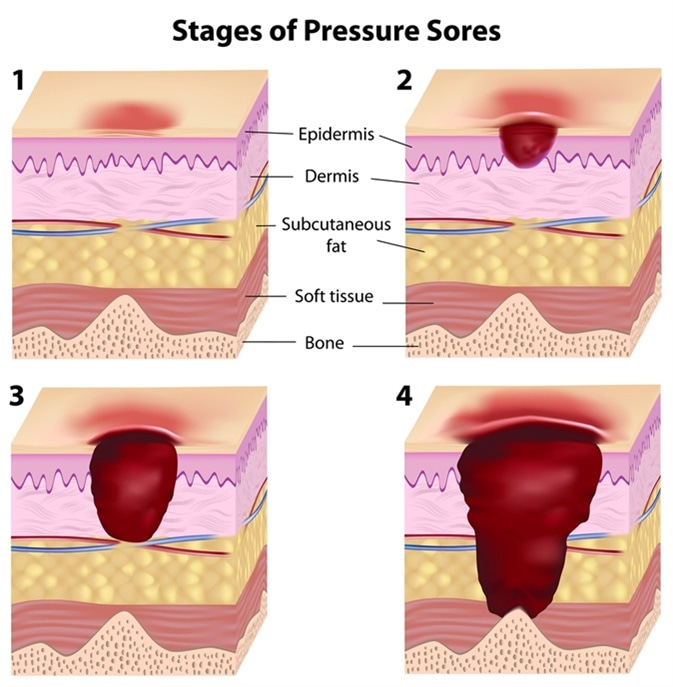 Stages of pressure sores. Image Credit: Alila Medical Media / Shutterstock